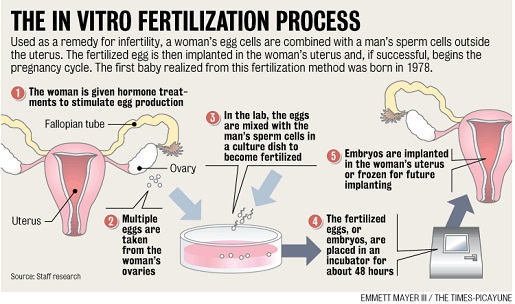 the use and benefits of in vitro fertilization In vitro fertilization (ivf) for pregnancy to occur, an egg must be fertilized by a sperm when fertilization happens inside the body, it is called in vivo fertilization.