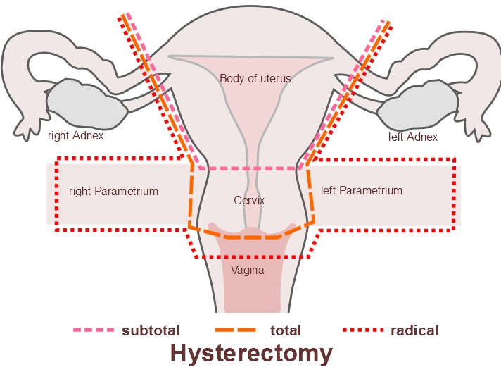 hysterectomy to remove fibroids, hysterectomy to remove uterus, hysterectomy to remove fibroid tumors, hysterectomy to remove ovaries, hysterectomy to remove cervix