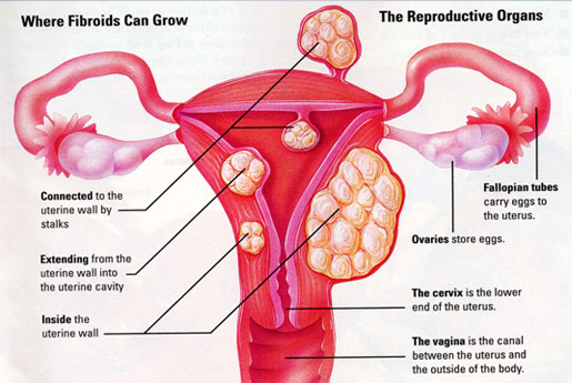 fibroids estrogen levels, uterine fibroids growth, uterine fibroids estrogen levels, fibroids high estrogen levels, do fibroids affect estrogen levels