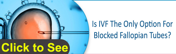 Is IVF The Only Option For Blocked Fallopian Tubes