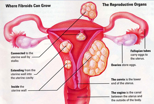 uterine fibroids growth, shrink uterine fibroids naturally, fibroids growth during pregnancy