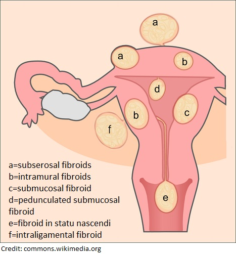 What Causes Fibroids, what causes fibroids to grow, what causes fibroids and cysts, what causes fibroids on your uterus, emotional causes of uterine fibroids