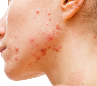 pcos related cystic acne, PCOS cystic acne, pcos+cystic acne on chin, cystic acne on jawline pcos, polycystic ovaries and acne, how to treat pcos acne, controlling acne with pcos, pcos and back acne, pcos cystic acne on chin, cure pcos cystic acne