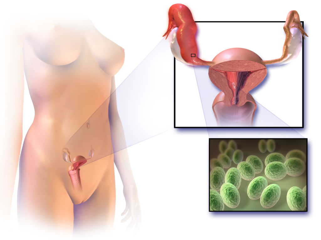 inflammatory disease, fallopian tube blockage causes, what can cause fallopian tube blockage, what can cause your fallopian tubes to be blocked